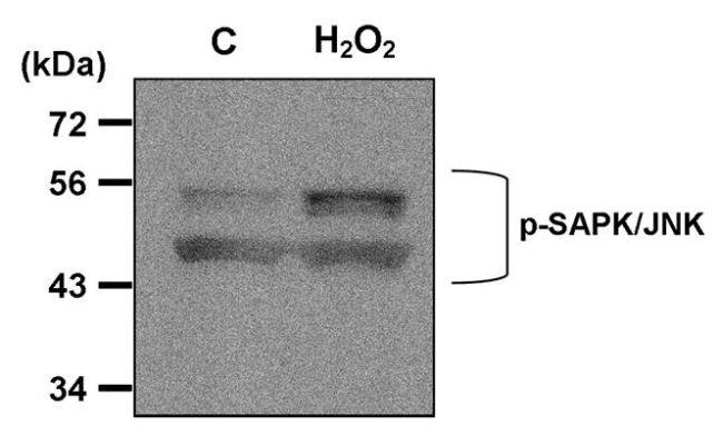 Phospho-JNK1/JNK2 (Thr183, Tyr185) Antibody (MA5-14943) in Western Blot