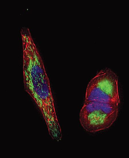 HeLa cells were transduced with CellLight™ Mitochondria-GFP (Cat. No. C10600) and CellLight™ Talin-RFP (Cat. no. C10612).  The following day, cells were stained with Hoechst 33342 (Cat. No. H24192) and imaging was performed on live cells using a DeltaVision® Core microscope and standard DAPI/FITC/TRITC filter sets.