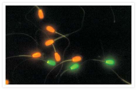 A mixture of live and dead bovine sperm cells stained with the dyes provided in our LIVE/DEAD® Sperm Viability Kit (Cat. no. L7011). Live sperm with intact membranes are labeled with our proprietary cell-permeant nucleic acid stain, SYBR® 14, and fluoresce green.  Dead sperm, which have been killed by unprotected freeze-thawing, are labeled with propidium iodide (Cat. no. P1304MP, P3566, P21493) and fluoresce red-orange. The image was contributed by Duane L. Garner, School of Veterinary Medicine, University of Nevada, Reno, and Lawrence A. Johnson, USDA Agricultural Research Service.