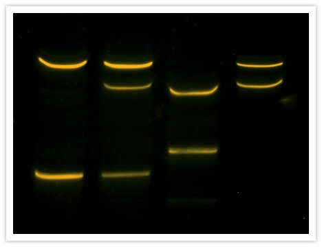 Sensitive and direct visualization of single-strand conformation polymorphism (SSCP) in exon 1 of human K-ras using SYBR® Gold Nucleic Acid Gel Stain (Cat. No. S11494). Lane 1 contains wild-type DNA and lanes 2–4 contain DNA from various adenocarcinoma samples with mutant alleles. Image contributed by Valerie DeGroff and Chris Weghorst, Ohio State University.