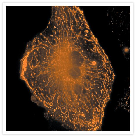 A live bovine pulmonary artery endothelial cell stained with 500 nM X-rhod-1 AM (Cat. no. X14210) for 30 minutes at 30°C. The image was deconvolved using Huygens software (Scientific Volume Imaging, http://www.svi.nl/).