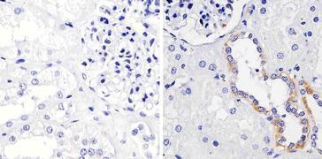 FGFR1 Antibody (13-3100)