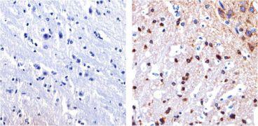 Tau Antibody (13-6400)