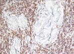 Immunohistochemical staining.
