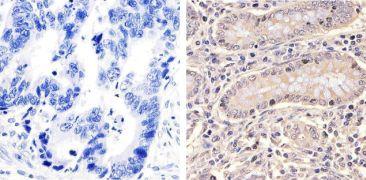 HSP70 Antibody (33-3800)