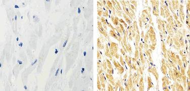 p38 MAPK beta Antibody (33-8700)