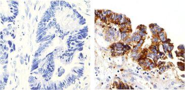 delta Catenin Antibody (33-9600)