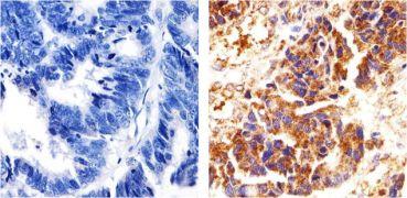 delta Catenin Antibody (33-9700)