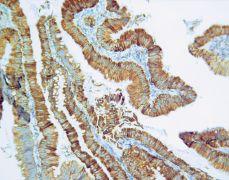 Thymidylate Synthase Antibody (35-5800)