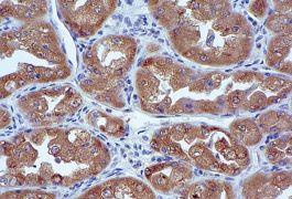 Ezrin Antibody (35-7300)