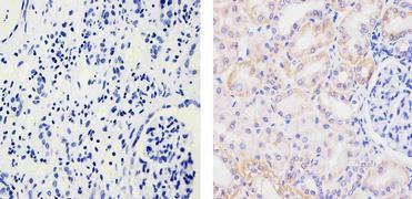 EphB4 Antibody (35-2900)