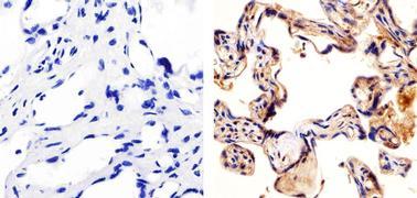 FLT-4 / VEGFR3 Antibody (36-0200)