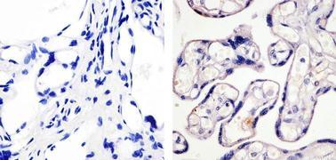 Phospho-eNOS (Ser1179) Antibody (36-9100)