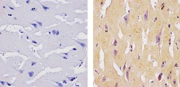 SOCS1 Antibody (37-4100)
