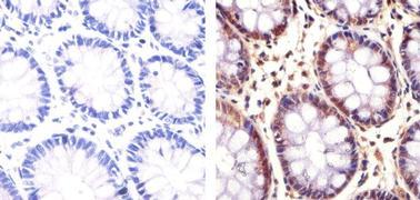 PLK1 Antibody (37-7000)