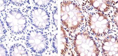 PLK1 Antibody (37-7100)