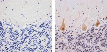 Dsk2 Antibody (37-7700)