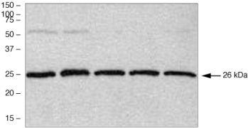PGP9.5 Antibody (38-1000)