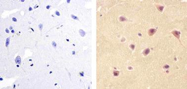 PAX3 Antibody (38-1801)