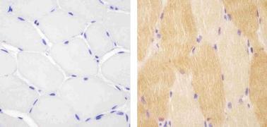 PI3KC3 Antibody (38-2100)