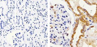 IRAK1 Antibody (38-5600)