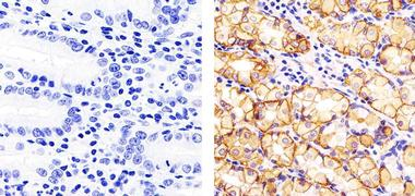 Claudin 18 Antibody (38-8000)