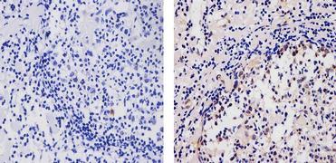 AID Antibody (39-2500)