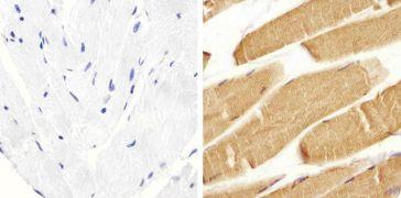 Metadherin Antibody (40-6400)
