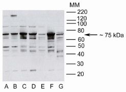 Metadherin Antibody (40-6500)