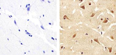 ANGPTL4 Antibody (40-9800)
