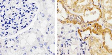 Occludin Antibody (42-2400)