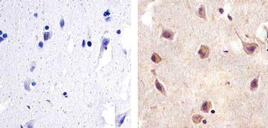 SMAD2 Antibody (436500)