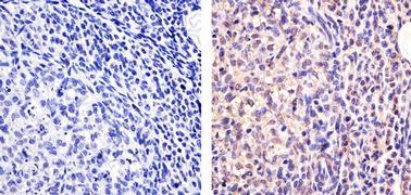 Galectin 1 Antibody (43-7400)