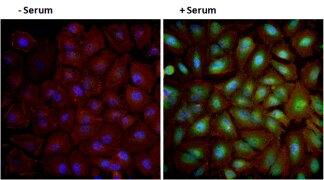 Phospho-AKT1 (Ser473) Antibody (44-621G)