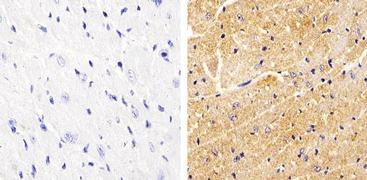 Phospho-Vinculin (Tyr822) Antibody (44-1080G)