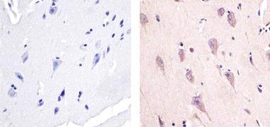 Phospho-AMPK alpha-1,2 (Thr172) Antibody (44-1150G)