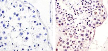 Phospho-MDM2 (Ser166) Antibody (44-1400G)
