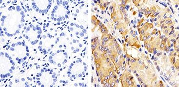 Phospho-RAC1/CDC42 (Ser71) Antibody (44-214G)