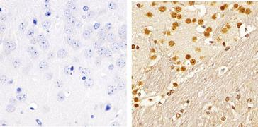 Phospho-SMAD2 (Ser465, Ser467) Antibody (44-244G)