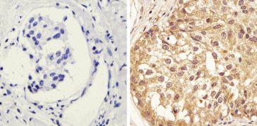 Phospho-STAT1 (Tyr701) Antibody (44-376G)