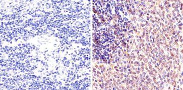 Phospho-STAT1 (Ser727) Antibody (44-382G)