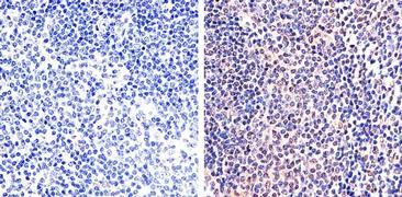 Phospho-STAT5 alpha (Tyr694) Antibody (44-390G)