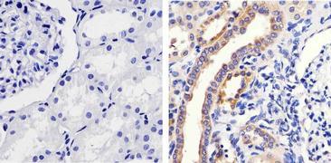 Phospho-MEK1 (Ser298) Antibody (44-460G)