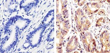 Phospho-c-Kit / CD117 pTyr730 Antibody (44-496G)