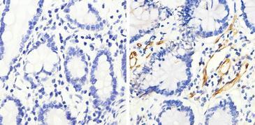 Phospho-HSP27 (Ser82) Antibody (44-534G)