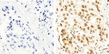 Phospho-IRS1 (Ser616) Antibody (44-550G)
