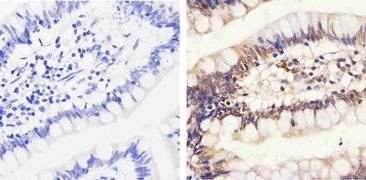 Phospho-Rb (Thr826) Antibody (44-576G)