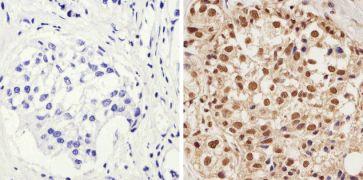 Phospho-AKT1 (Thr308) Antibody (44-602G)