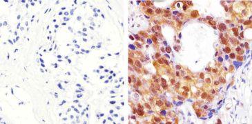 AKT Pan Antibody (44-609G)