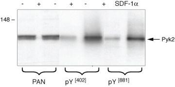 Phospho-FAK2 (Tyr402) Antibody (44-618G)